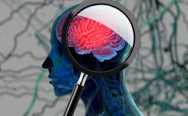 Jak zapobiec demencji starczej?