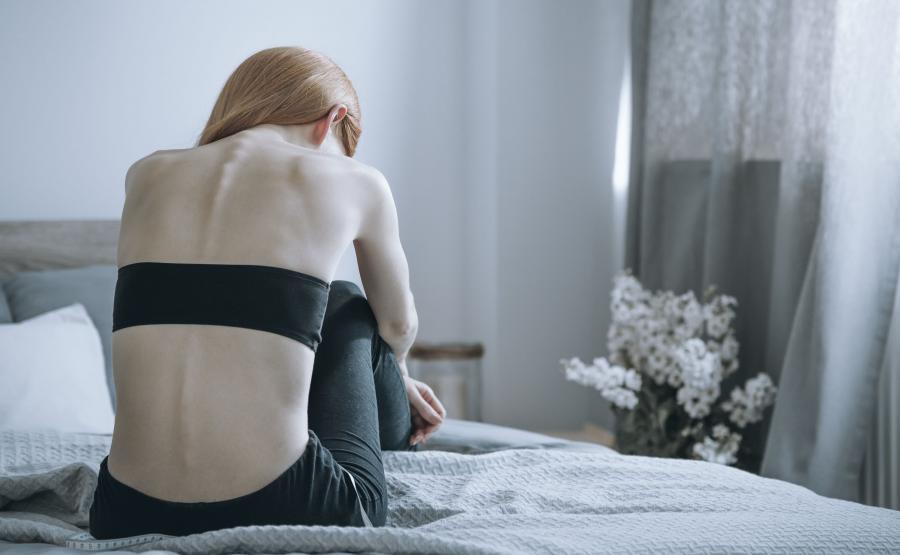 Chuda dziewczyna, anoreksja