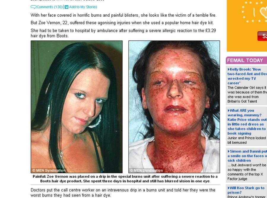 Poparzyła się…  farbą do włosów