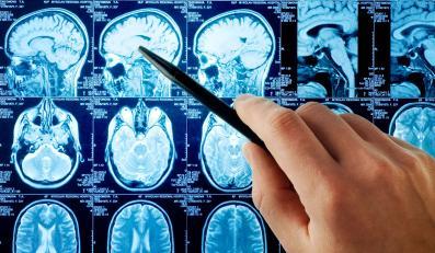 Urządzenie zainstalowane w Krakowie łączy funkcjonalność PET z tomografią komputerową