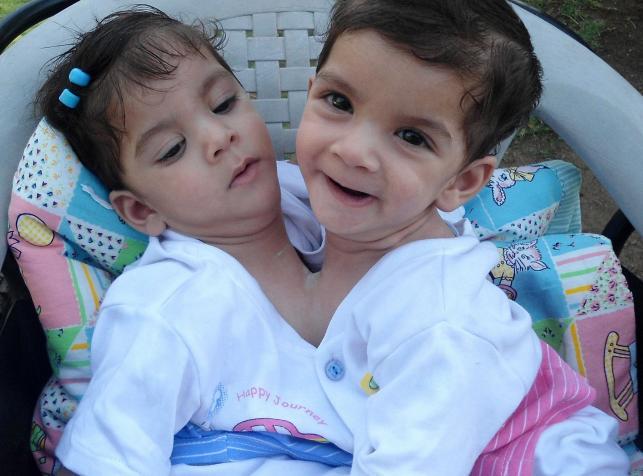 Bliźniaczki syjamskie - Aradhana i Stuti