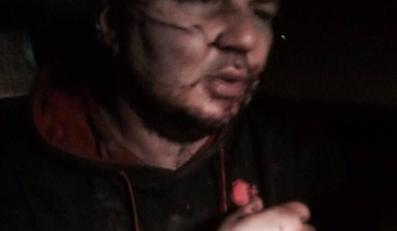 Pobity Dmytro Bułatow, źródło: profil Olgi Koszelenko