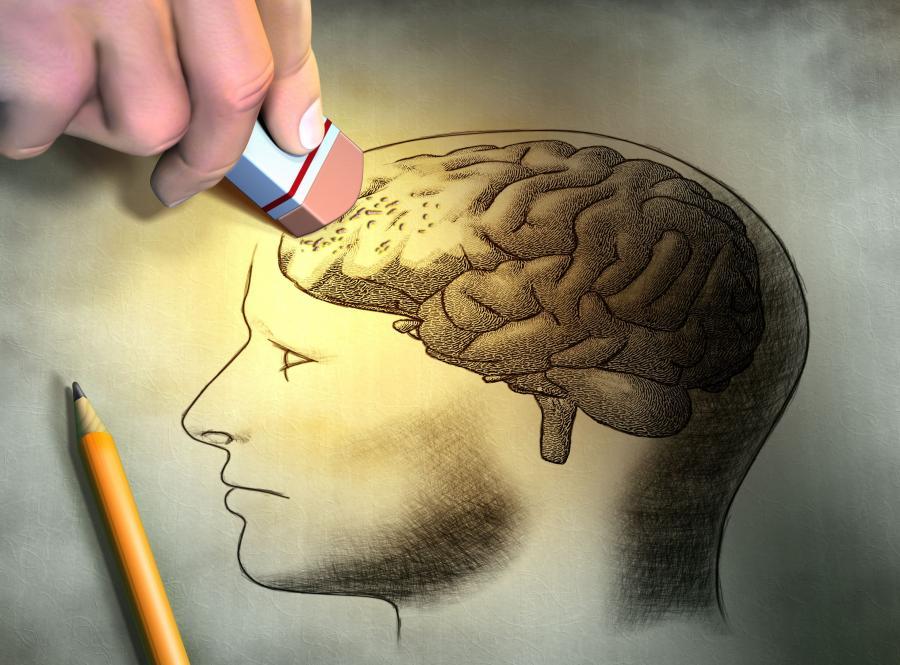 Mity na temat alzheimera