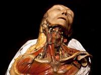 Najmroczniejsze muzeum na świecie. Medyczne kurioza i szokujące ZDJĘCIA