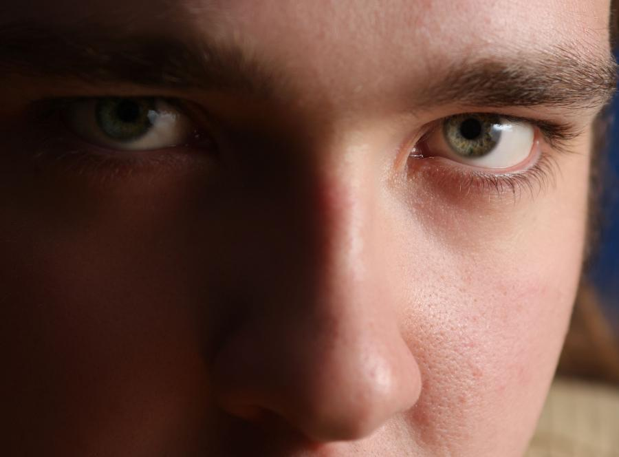 6. Chwyć skórę między brwiami